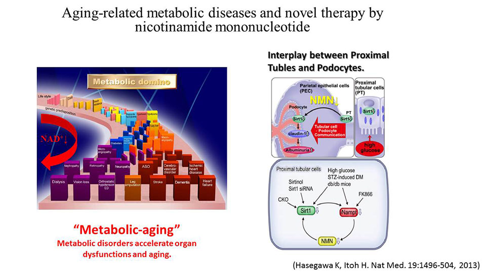 Aging-related metabolic diseases and novel therapy by  nicotinamide mononucleotide